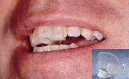 Dental Aesthetics Dr Biju Cyriac Dds Is A General And